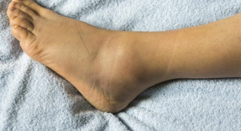 Edema - Swelling of Ankles and Feet During Pregnancy | Reasons, Risks, Prevention and Cure